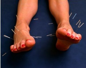 foot_acupuncture.jpg